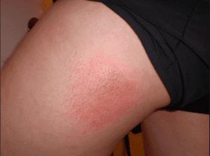 Pantyhose causes skin rash