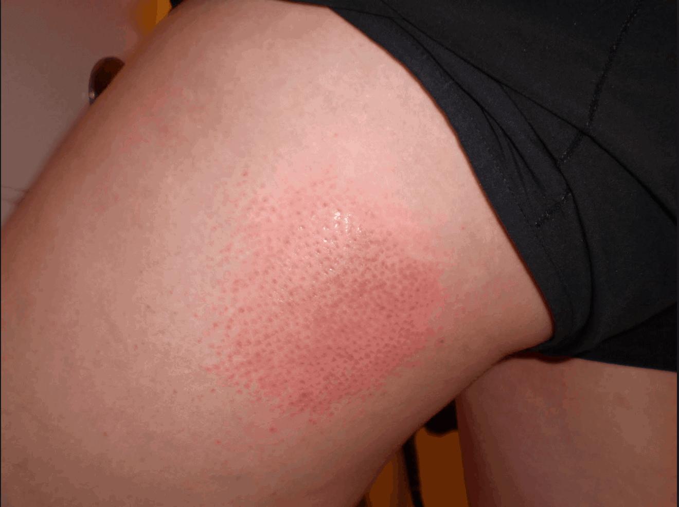 sweat rash
