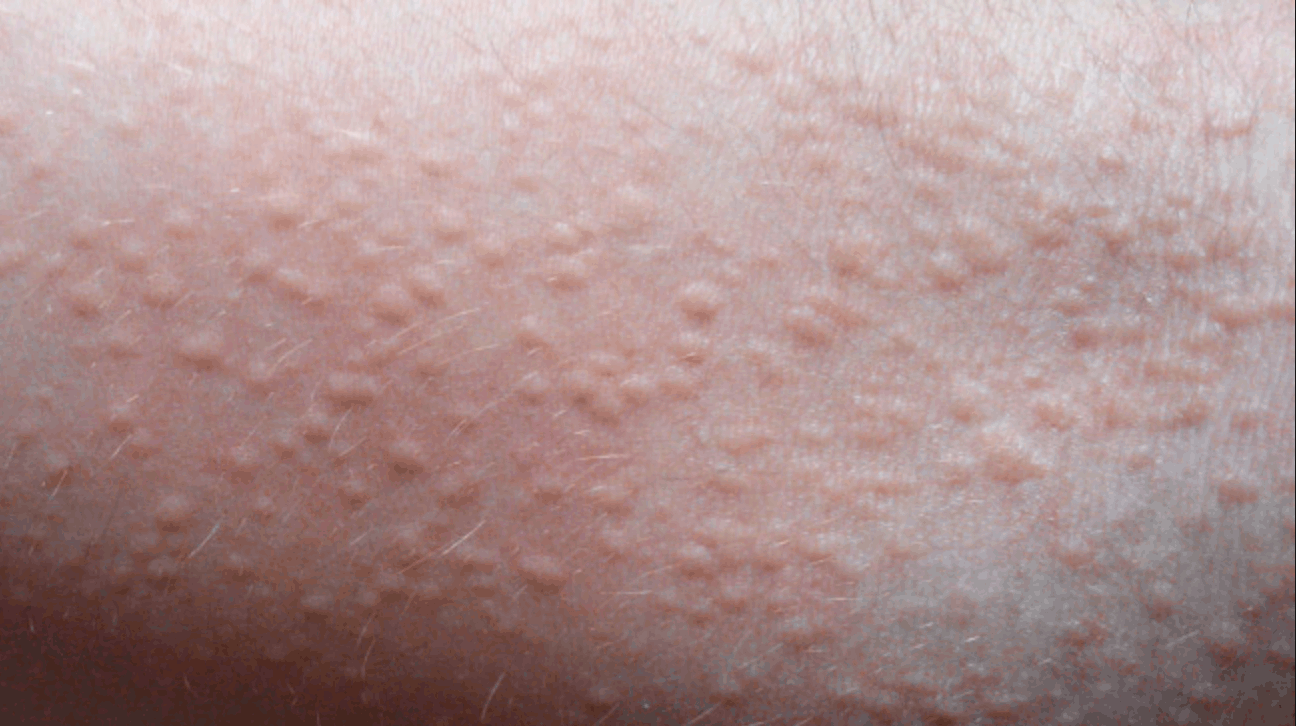 heat sweat rash in groin area