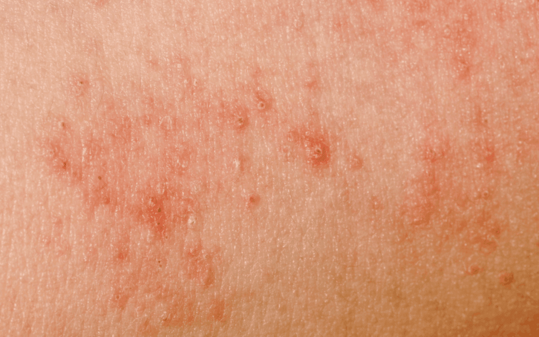 How New Fibers are Helping Avoid Infected or Irritated Skin