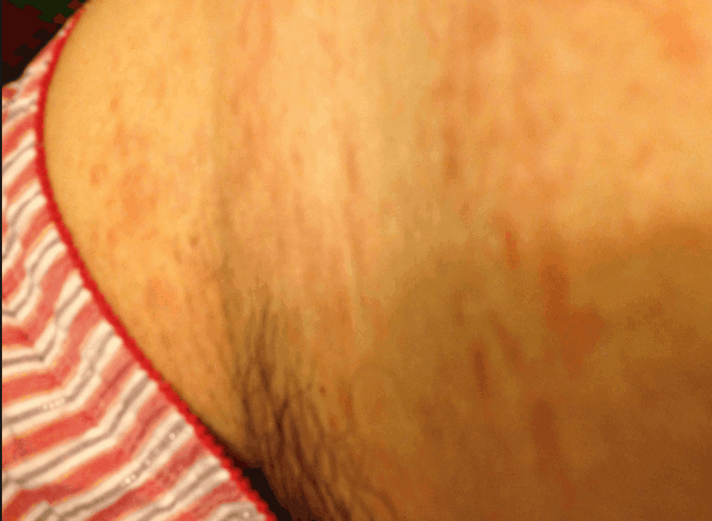 groin rash pictures #11