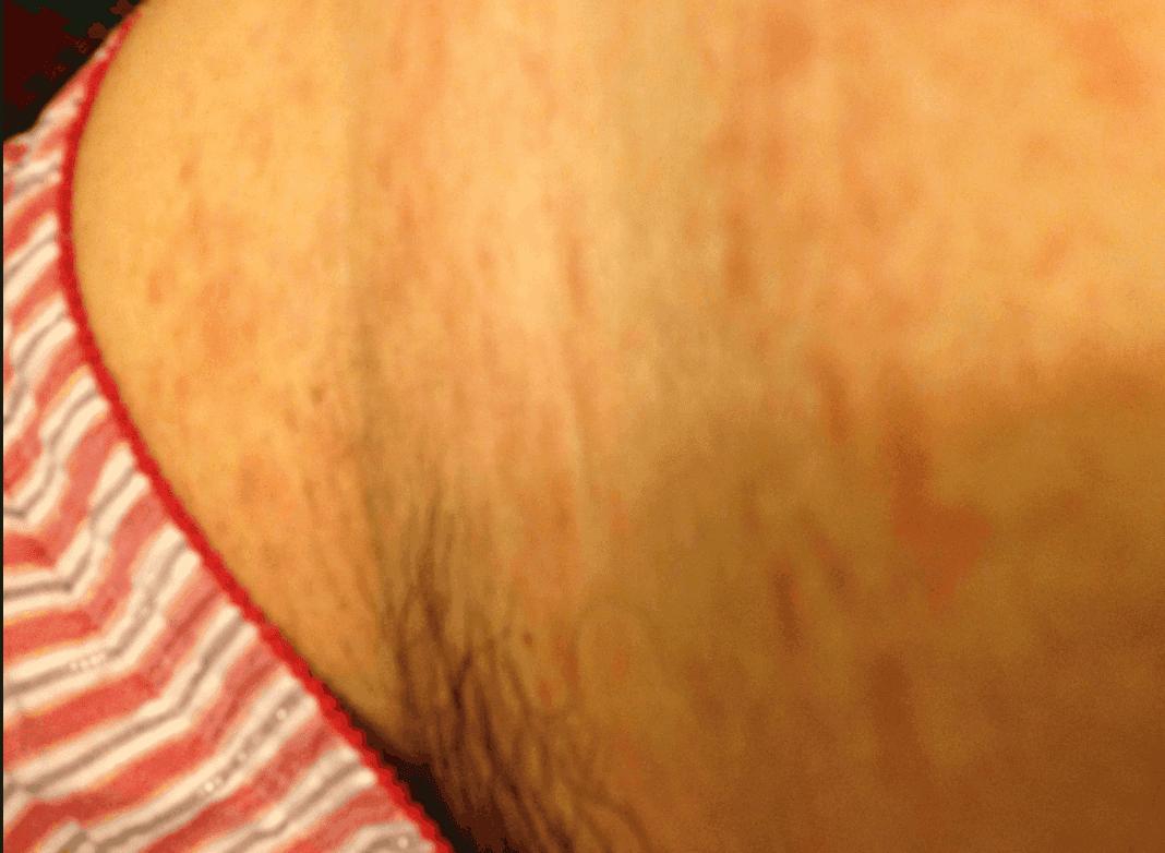 I Scratched My Skin Until I Was Bleeding