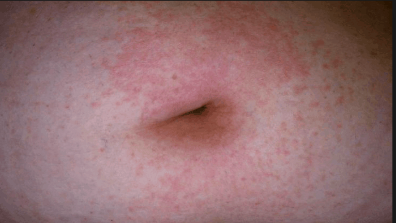 Relief for Psoriasis and Shingles Sufferers